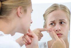 Trądzik kosmetyczny – co to jest i jak się go pozbyć?