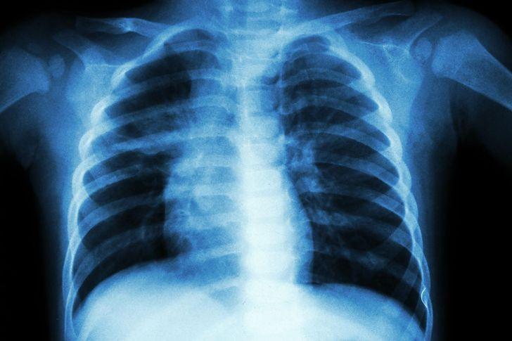 Rzucasz palenie? Oto produkty, które oczyszczą twoje płuca z nikotyny