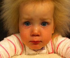 Dziewczynka cierpi na rzadką chorobę. Jej włosów nie da się rozczesać