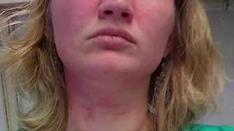 Leczenie trądziku różowatego (WIDEO)