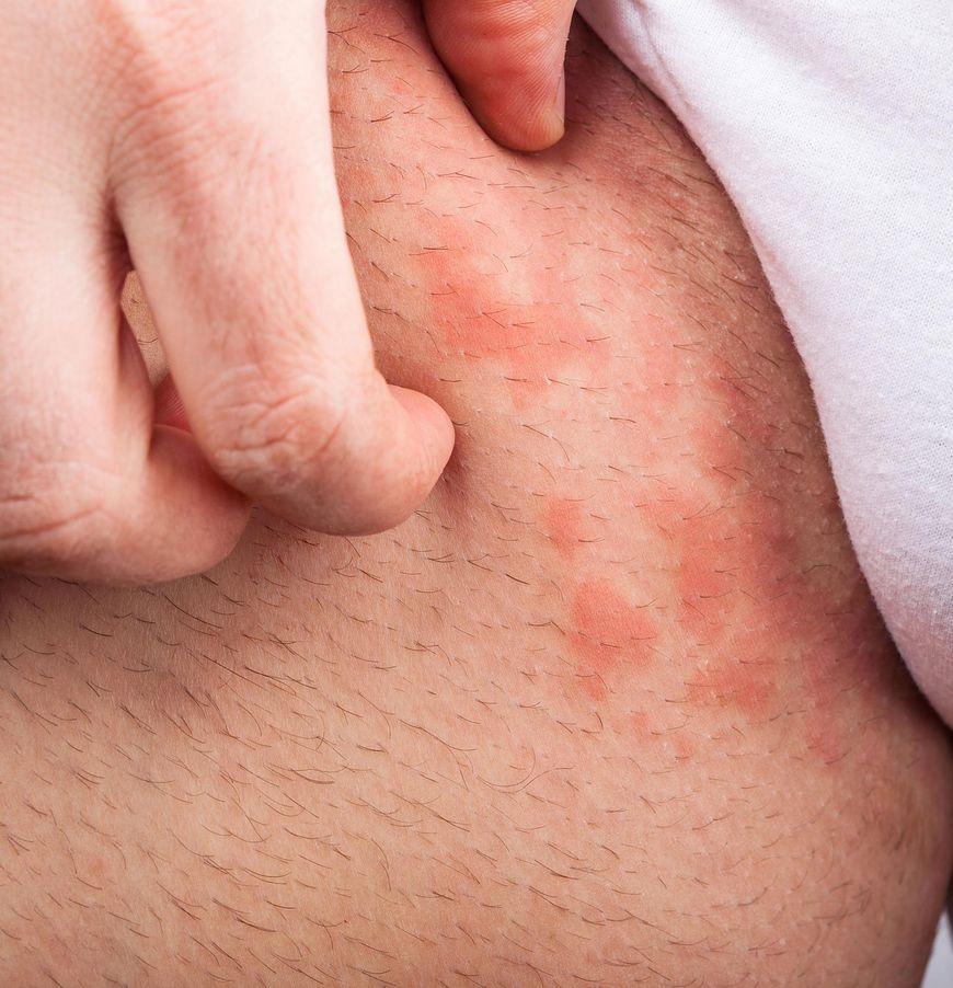 Atopowe zapalenie skóry na zdjęciach - objawy