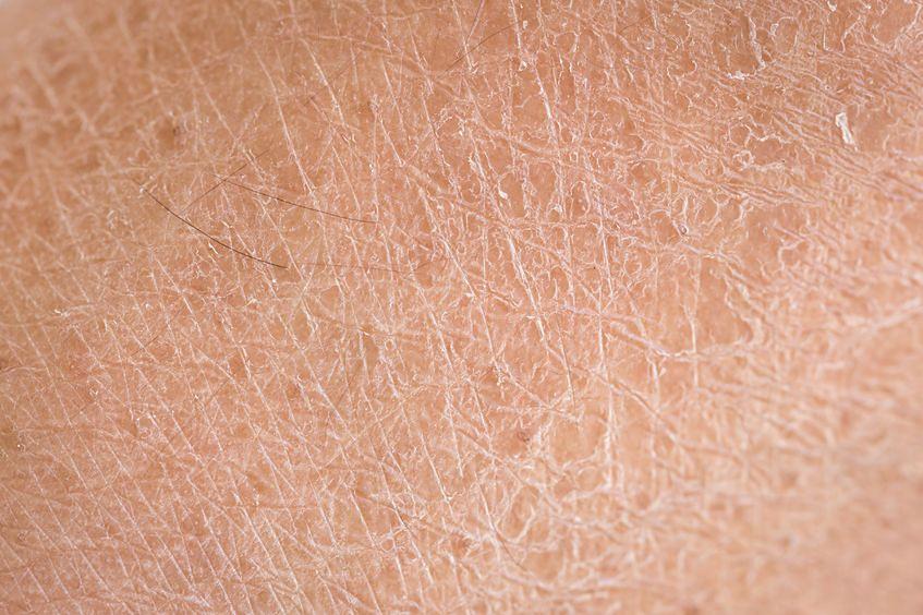 Stan twojej skóry się pogorszy