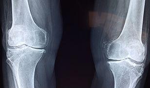 Druk 3D pomoże sprawniej leczyć kości
