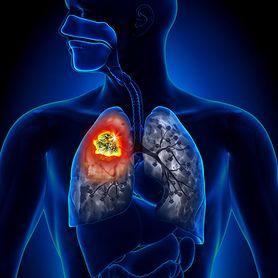 Rak serca. Bardzo rzadki i bardzo poważny nowotwór