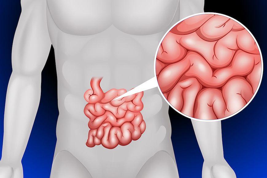 Leczenie SIBO – przerost bakterii w jelicie cienkim