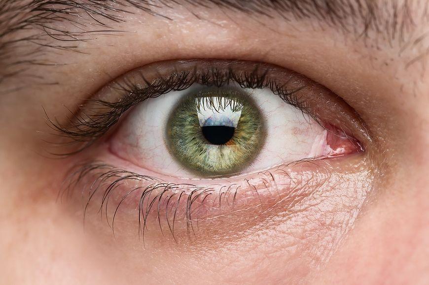 Grudki na powiekach mogą świadczyć o chorobie [123rf.com]