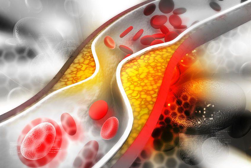 Tętnica zatkana przez cholesterol