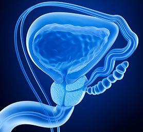 Gruczoł prostaty