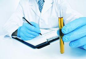 Najczęstsze nieprawidłowości, które można wykryć przy pomocy ogólnego badania moczu