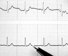 Czym grożą zaburzenia rytmu serca? Jak je leczyć?