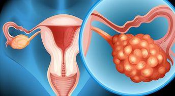 Pierwsze symptomy raka jajnika