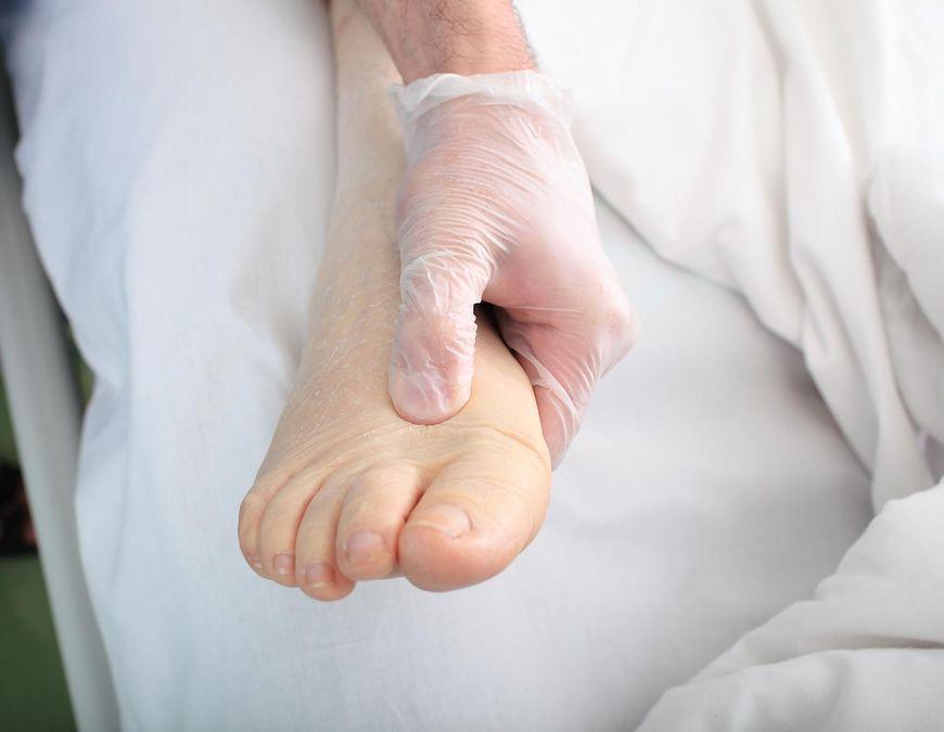 Obrzęk stóp może być skutkiem choroby nerek