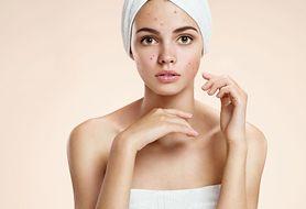Przebarwienia skóry - jak zmniejszyć ich widoczność?
