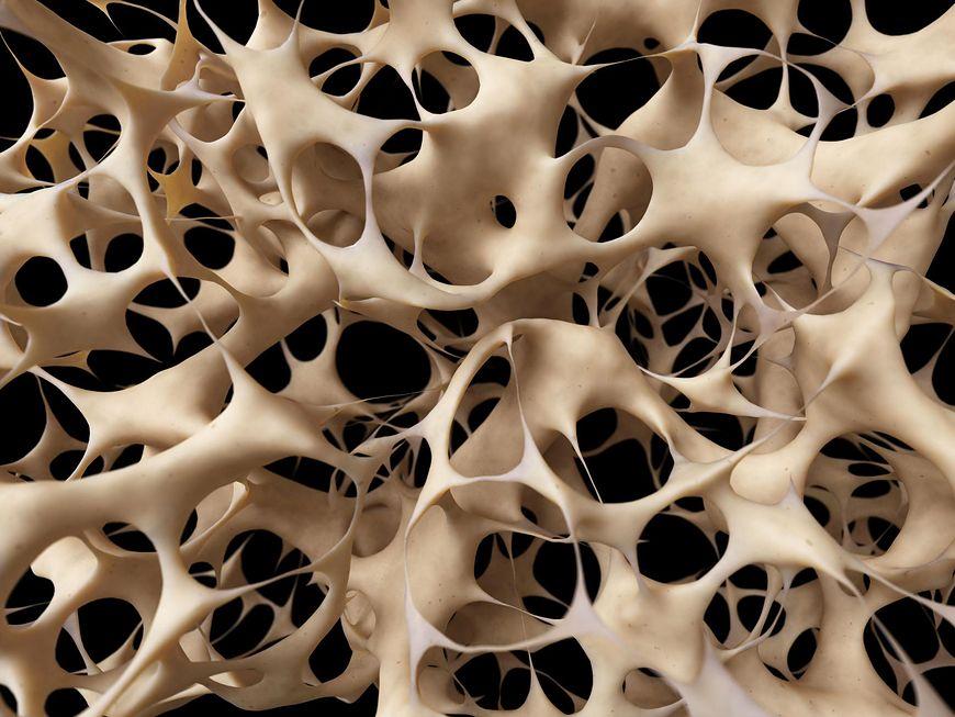 Osteoporoza to choroba, charakteryzująca się małą gęstością kości