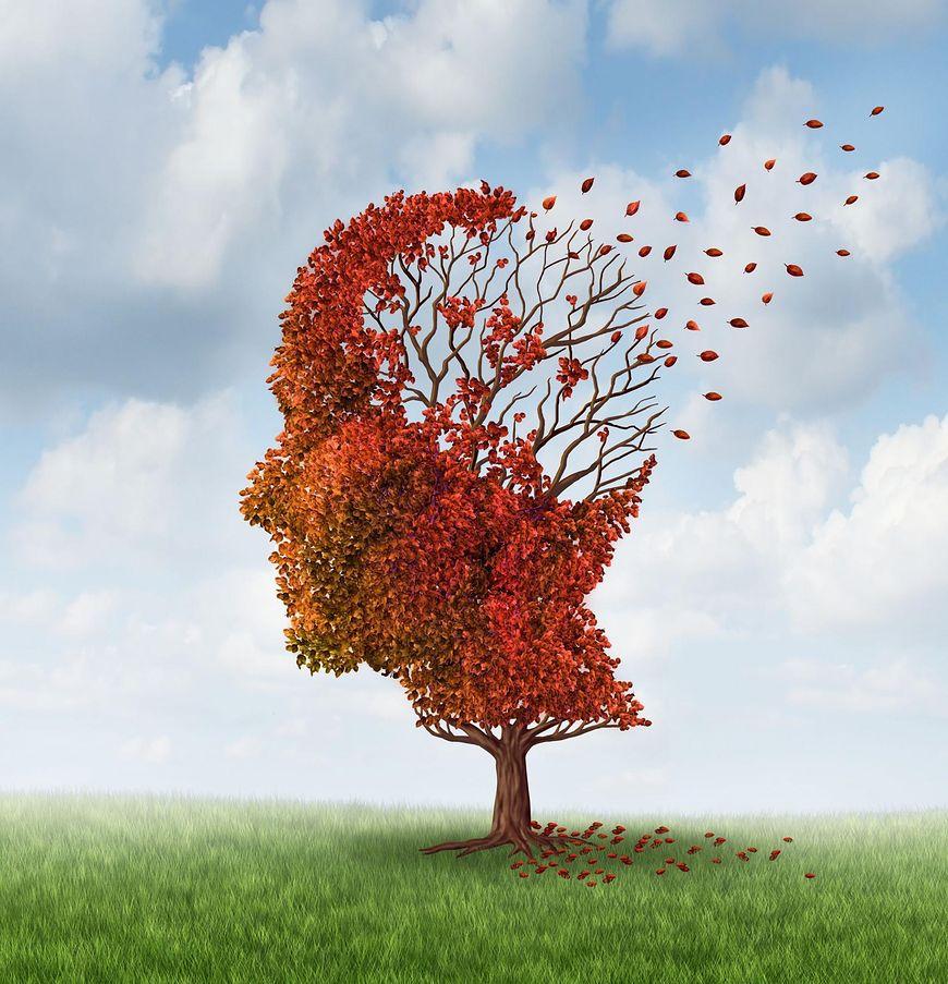 Czym jest choroba Alzheimera?