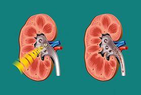Badanie ultrasonograficzne w diagnostyce chorób nerek i dróg moczowych