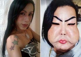 Juju Oliveira chciała poprawić wygląd twarzy. W jej policzki wstrzyknięto silikon