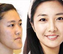 Operacje plastyczne w Korei