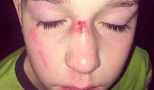 Chory 11-latek jest celem brutalnych ataków w szkole