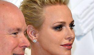 Przesadziła z botoksem?