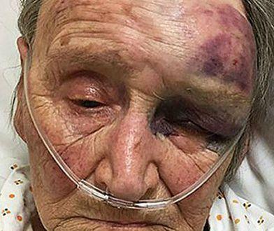 88-latka musiała czołgać się do domu sąsiadów, by wezwać pomocy.