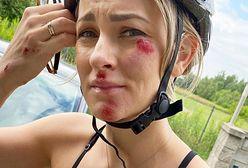 Znana trenerka fitness miała wypadek na rowerze. Jej historia jest przestrogą