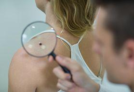 Profilaktyka, diagnozowanie i leczenie czerniaka