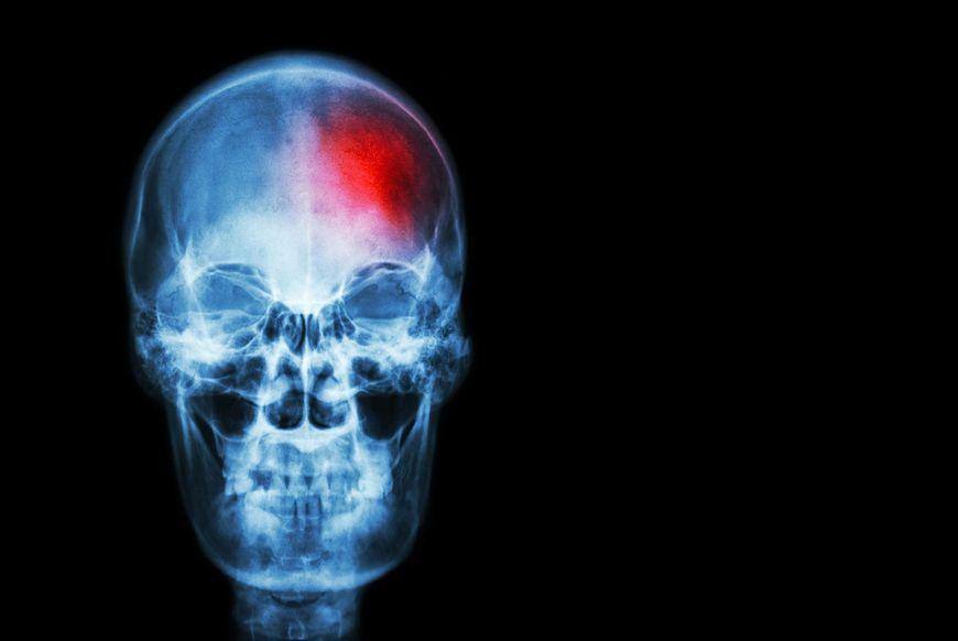 Według Amerykańskiej Fundacji Migreny tak intensywny ból może być jednym z ostatnich sygnałów zbliżającego się udaru, pęknięcia tętniaka czy krwotoku mózgu