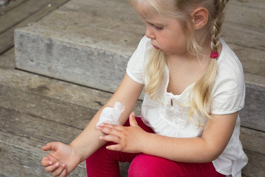 Objawy atopowego zapalenia skóry u dzieci powyżej 2. roku życia