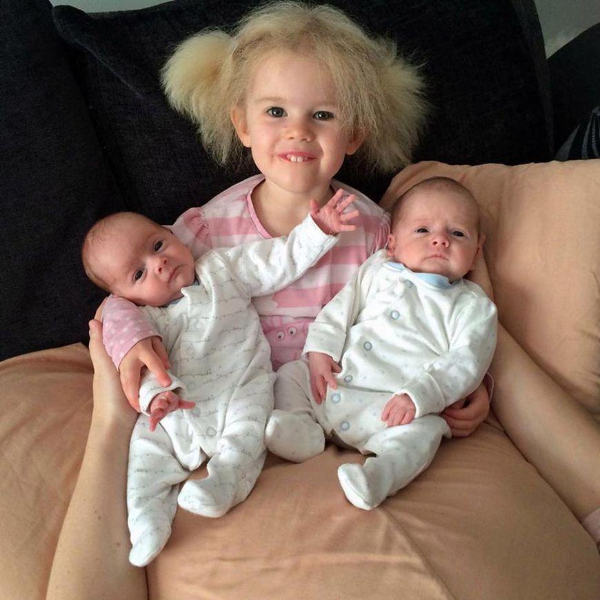 Zespół włosów niedających się uczesać [PA Real life]