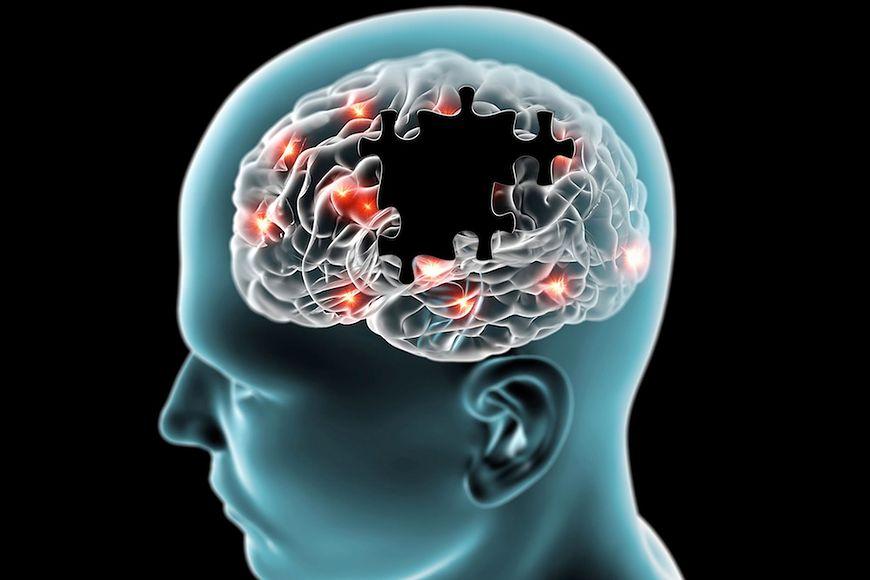 Odwrócenie uszkodzeń mózgu