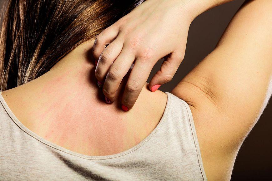 swędzenie może świadczyć o chorobie [123rf.com]
