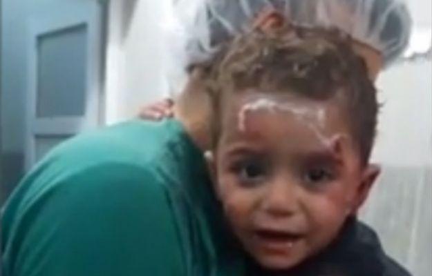 Agonia syryjskich dzieci na poruszającym wideo. Zakrwawiony chłopczyk przytula się do lekarza i nie chce go puścić