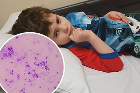 6-latek zmarł na sepsę. Lekarze odesłali go do domu, twierdząc, że to infekcja