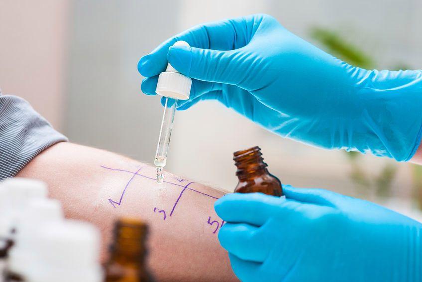 Test – dowód na alergię