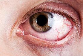 Objawy zespołu suchego oka