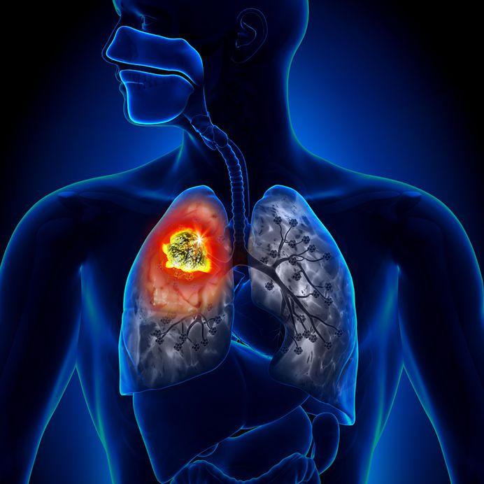 Rak serca należy do rzadkich, ale bardzo poważnych schorzeń