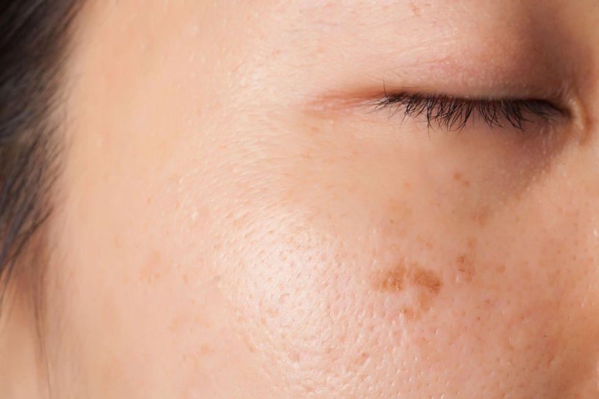 Pomaga w leczeniu raka skóry i bielactwa