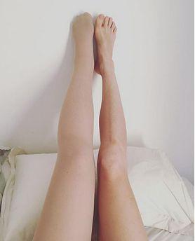 Podczas ciąży zauważyła, że jej noga ekstremalnie się powiększa. Obrzęk nie zniknął