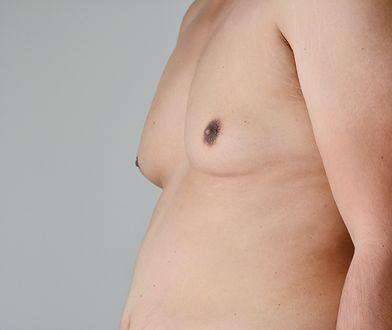 Lipomastia dotyczy najczęściej mężczyzn z nadwagą.