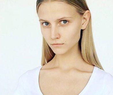 Polska modelka pobita przez chłopaka. Internauci nie dowierząją