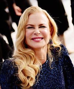 Nicole Kidman kiedyś i dziś. Botoks zrobił swoje