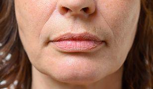 Zmarszczki palacza to nieestetyczne wgłębienia wokół ust, których można się pozbyć