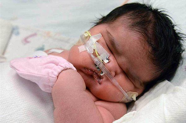 USA: na świat przyszła dziewczynka ważąca 6,27 kilograma