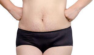 Rozstępy na brzuchu można wybielić domowymi sposobami.