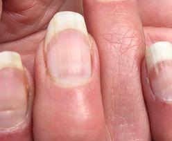 Masz takie bruzdy na paznokciach? To może być koronawirus