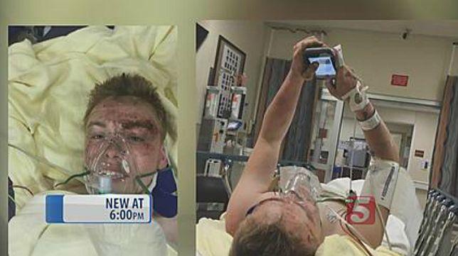Siri uratowała życie osiemnastolatka przygniecionego przez auto