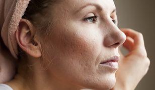 Trądzik grudkowy może dotknąć także dorosłe kobiety.