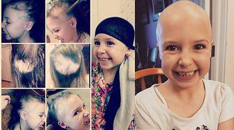 7-latka w miesiąc straciła wszystkie włosy. Mama znalazła rozwiązanie na pozbycie się jej kompleksów