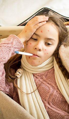 Jakie są symptomy odry u dzieci?